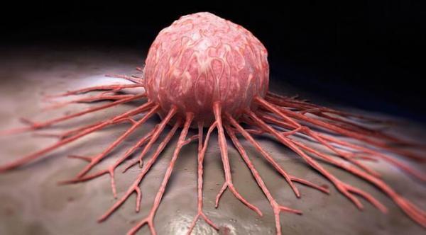 انواع سرطان و نشانه های اولیه آن ها